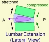 Lumbarextension
